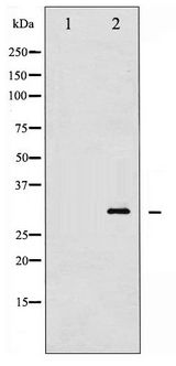 Western blot of TNNI3 phosphorylation expression in Mouse heart tissue lysates,The lane on the left is treated with the antigen-specific peptide.