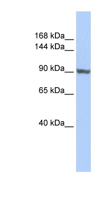 TNNI3K antibody LS-C102284 Western blot of HepG2 cell lysate.  This image was taken for the unconjugated form of this product. Other forms have not been tested.