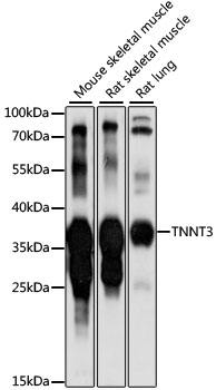 TNNT3 Antibody - Western blot analysis of extracts of various cell lines, using TNNT3 antibody at 1:1000 dilution. The secondary antibody used was an HRP Goat Anti-Rabbit IgG (H+L) at 1:10000 dilution. Lysates were loaded 25ug per lane and 3% nonfat dry milk in TBST was used for blocking. An ECL Kit was used for detection and the exposure time was 10s.