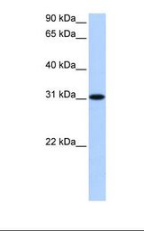 TNRC18 Antibody - 721_B cell lysate. Antibody concentration: 0.5 ug/ml. Gel concentration: 12%.  This image was taken for the unconjugated form of this product. Other forms have not been tested.