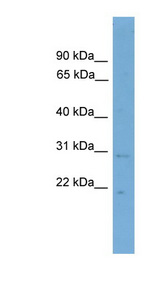 CNPY3 / TNRC5 antibody LS-C116762 Western blot of ACHN lysate.  This image was taken for the unconjugated form of this product. Other forms have not been tested.