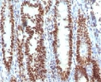 IHC testing of FFPE human gastric carcinoma and TOX3 antibody (clone CTRF9).  This image was taken for the unmodified form of this product. Other forms have not been tested.