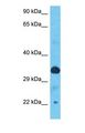 Western blot of TOB1 Antibody with human Ovary Tumor lysate.  This image was taken for the unconjugated form of this product. Other forms have not been tested.