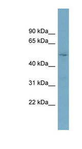TOM1L2 antibody LS-C111342 Western blot of OVCAR-3 cell lysate.  This image was taken for the unconjugated form of this product. Other forms have not been tested.