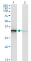 Western blot of TOMM34 expression in transfected 293T cell line by TOMM34 monoclonal antibody (M02), clone 1D2.
