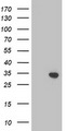 HEK293T cells were transfected with the pCMV6-ENTRY control (Left lane) or pCMV6-ENTRY TOMM34 (Right lane) cDNA for 48 hrs and lysed. Equivalent amounts of cell lysates (5 ug per lane) were separated by SDS-PAGE and immunoblotted with anti-TOMM34.