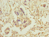 Immunohistochemistry of paraffin-embedded human pancreatic cancer at dilution of 1:100