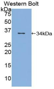 Western blot of recombinant TOP1 / Topoisomerase I.