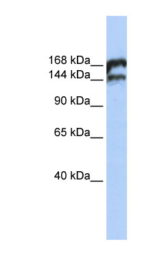 TOP2B antibody LS-C110235 Western blot of Jurkat lysate.  This image was taken for the unconjugated form of this product. Other forms have not been tested.