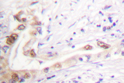 IHC of Topoisomerase II (A32) pAb in paraffin-embedded human lung carcinoma tissue.