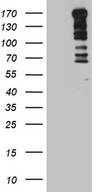 TOPBP1 Antibody - HEK293T cells were transfected with the pCMV6-ENTRY control. (Left lane) or pCMV6-ENTRY TOPBP1. (Right lane) cDNA for 48 hrs and lysed
