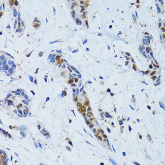 Immunohistochemistry of paraffin-embedded human breast cancer tissue.