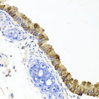 Immunohistochemistry of paraffin-embedded mouse lung using TOPBP1 antibody at dilution of 1:100 (40x lens).