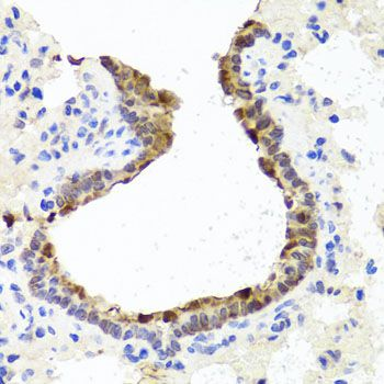 TOPBP1 Antibody - Immunohistochemistry of paraffin-embedded rat lung using TOPBP1 antibody at dilution of 1:100 (40x lens).