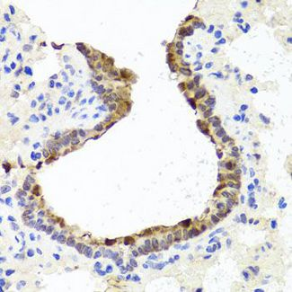 Immunohistochemistry of paraffin-embedded rat lung using TOPBP1 antibody at dilution of 1:100 (40x lens).
