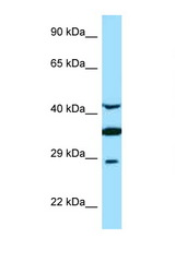 TOR1A / Torsin A antibody Western blot of Fetal Brain lysate. Antibody concentration 1 ug/ml.  This image was taken for the unconjugated form of this product. Other forms have not been tested.