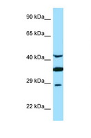 TOR1A / Torsin A Antibody - TOR1A / Torsin A antibody Western blot of Fetal Brain lysate. Antibody concentration 1 ug/ml.  This image was taken for the unconjugated form of this product. Other forms have not been tested.