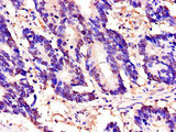 Immunohistochemistry of paraffin-embedded human colon cancer using TOR1A Antibody at dilution of 1:100