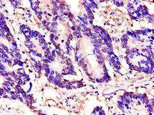 TOR1A / Torsin A Antibody - Immunohistochemistry of paraffin-embedded human colon cancer using TOR1A Antibody at dilution of 1:100