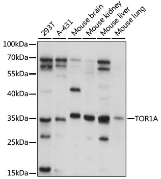 TOR1A / Torsin A Antibody - Western blot analysis of extracts of various cell lines, using TOR1A antibody at 1:1000 dilution. The secondary antibody used was an HRP Goat Anti-Rabbit IgG (H+L) at 1:10000 dilution. Lysates were loaded 25ug per lane and 3% nonfat dry milk in TBST was used for blocking. An ECL Kit was used for detection and the exposure time was 15s.