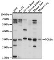 Western blot analysis of extracts of various cell lines, using TOR1A antibody at 1:1000 dilution. The secondary antibody used was an HRP Goat Anti-Rabbit IgG (H+L) at 1:10000 dilution. Lysates were loaded 25ug per lane and 3% nonfat dry milk in TBST was used for blocking. An ECL Kit was used for detection and the exposure time was 15s.