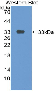 TP / Thymidine Phosphorylase Antibody - Western blot of recombinant TP / Thymidine Phosphorylase encoding amino acids 29-305.