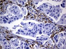 TP / Thymidine Phosphorylase Antibody - Immunohistochemical staining of paraffin-embedded Carcinoma of Human bladder tissue using anti-TYMP mouse monoclonal antibody.  heat-induced epitope retrieval by 10mM citric buffer, pH6.0, 120C for 3min)