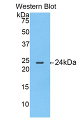 Western blot of recombinant TP / Thymidine Phosphorylase.  This image was taken for the unconjugated form of this product. Other forms have not been tested.