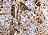 IHC of paraffin-embedded Carcinoma of Human lung tissue using anti-TYMP mouse monoclonal antibody.