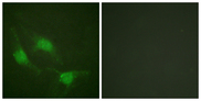 Immunofluorescence analysis of HeLa cells, using p53 Antibody. The picture on the right is blocked with the synthesized peptide.