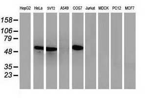 Western blot of extracts (35 ug) from 9 different cell lines by using anti-TP53 monoclonal antibody.