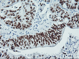 IHC of paraffin-embedded Carcinoma of Human pancreas tissue using anti-TP53 mouse monoclonal antibody.