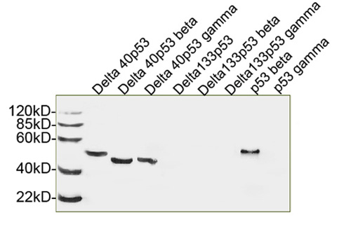 Western blot analysis of human recombinant 53 isoforms using p53 Antibody (5E8A3), mAb, Mouse. Delta 40p53:Predicted Size: 41 KD; Observed Size: 48 KD Delta 40p53 beta:Predicted Size: 35 KD; Observed Size: 45 KD Delta 40p53 gamma:Predicted Size: 36 KD; Observed Size: 45 KD p53 beta:Predicted Size: 39 KD; Observed Size: 47 KD
