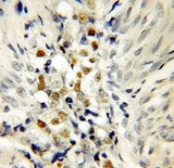Immunohistochemistry (IHC) analysis of p53 pAb in paraffin-embedded Endometrial cancer tissue.