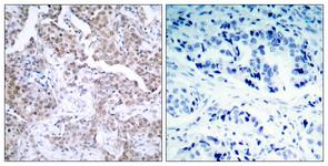 IHC of paraffin-embedded human breast carcinoma, using p53 (Phospho-Ser15) Antibody. The picture on the right is treated with the synthesized peptide.