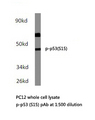 Western blot of p-p53 (S15) pAb in extracts from PC12 cells.