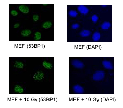 TP53BP1 / 53BP1 Antibody - Detection of 53BP1 in U2OS and 293T cell lysates (20 ug/lane). ECL with a 5 second exposure.  This image was taken for the unconjugated form of this product. Other forms have not been tested.