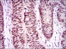 TP53BP1 / 53BP1 Antibody - IHC of paraffin-embedded colon cancer tissues using TP53BP1 mouse monoclonal antibody with DAB staining.