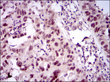 IHC of paraffin-embedded endometrial cancer tissues using TP53BP1 mouse monoclonal antibody with DAB staining.