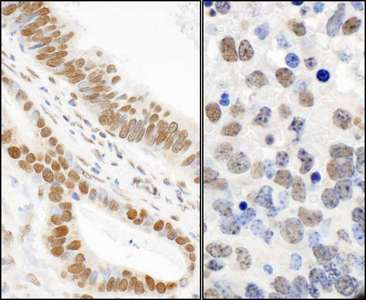 Detection of Human and Mouse Phospho 53BP1 (S25) by Immunohistochemistry. Sample: FFPE sections of human stomach carcinoma (left) and mouse teratoma (right). Antibody: Affinity purified rabbit anti- Phospho 53bp1 (S25) used at a dilution of 1:1000 (1 ug/ml). Detection: DAB.