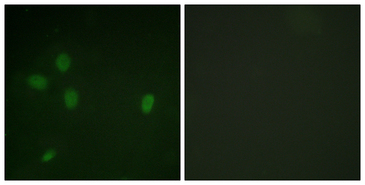 Immunofluorescence analysis of NIH/3T3 cells, using 53BP1 (Phospho-Ser25) Antibody. The picture on the right is blocked with the phospho peptide.