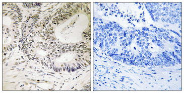 Immunohistochemistry analysis of paraffin-embedded human colon carcinoma, using 53BP1 (Phospho-Ser25) Antibody. The picture on the right is blocked with the phospho peptide.