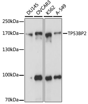 TP53BP2 / ASPP2 Antibody - Western blot analysis of extracts of various cell lines, using TP53BP2 antibody at 1:1000 dilution. The secondary antibody used was an HRP Goat Anti-Rabbit IgG (H+L) at 1:10000 dilution. Lysates were loaded 25ug per lane and 3% nonfat dry milk in TBST was used for blocking. An ECL Kit was used for detection and the exposure time was 1s.