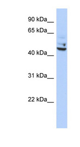 TP53I13 Antibody - TP53I13 antibody Western blot of OVCAR-3 cell lysate. This image was taken for the unconjugated form of this product. Other forms have not been tested.