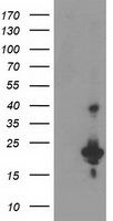 TP73-AS1 / KIAA0495 Antibody - HEK293T cells were transfected with the pCMV6-ENTRY control. (Left lane) or pCMV6-ENTRY KIAA0495. (Right lane) cDNA for 48 hrs and lysed
