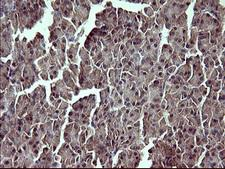 TP73 / p73 Antibody - IHC of paraffin-embedded Human pancreas tissue using anti-TP73 mouse monoclonal antibody. (Heat-induced epitope retrieval by 10mM citric buffer, pH6.0, 120°C for 3min).