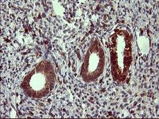 TP73 / p73 Antibody - IHC of paraffin-embedded Human endometrium tissue using anti-TP73 mouse monoclonal antibody. (Heat-induced epitope retrieval by 10mM citric buffer, pH6.0, 120°C for 3min).