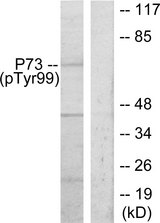 Western blot analysis of lysates from K562 cells treated with Pervanadate, using p73 (Phospho-Tyr99) Antibody. The lane on the right is blocked with the phospho peptide.