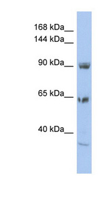 TPC1 / TPCN1 Antibody - TPCN1 antibody Western blot of HT1080 cell lysate. This image was taken for the unconjugated form of this product. Other forms have not been tested.