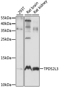 TPD52L3 Antibody - Western blot analysis of extracts of various cell lines, using TPD52L3 antibody at 1:1000 dilution. The secondary antibody used was an HRP Goat Anti-Rabbit IgG (H+L) at 1:10000 dilution. Lysates were loaded 25ug per lane and 3% nonfat dry milk in TBST was used for blocking. An ECL Kit was used for detection and the exposure time was 10S.